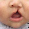 葉酸は口唇口蓋裂のリスクを減少できる…研究結果